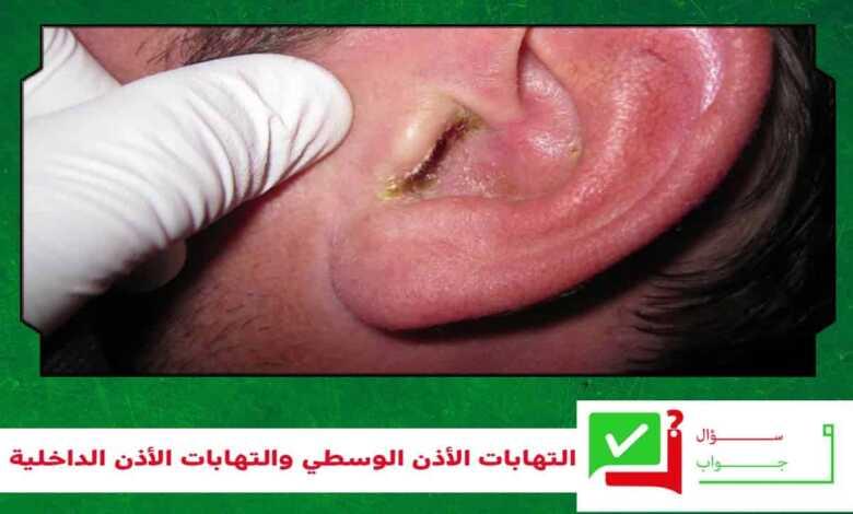 التهابات الأذن الوسطي والتهابات الأذن الداخلية