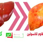 تأثير مقاومة الأنسولين على الكبد